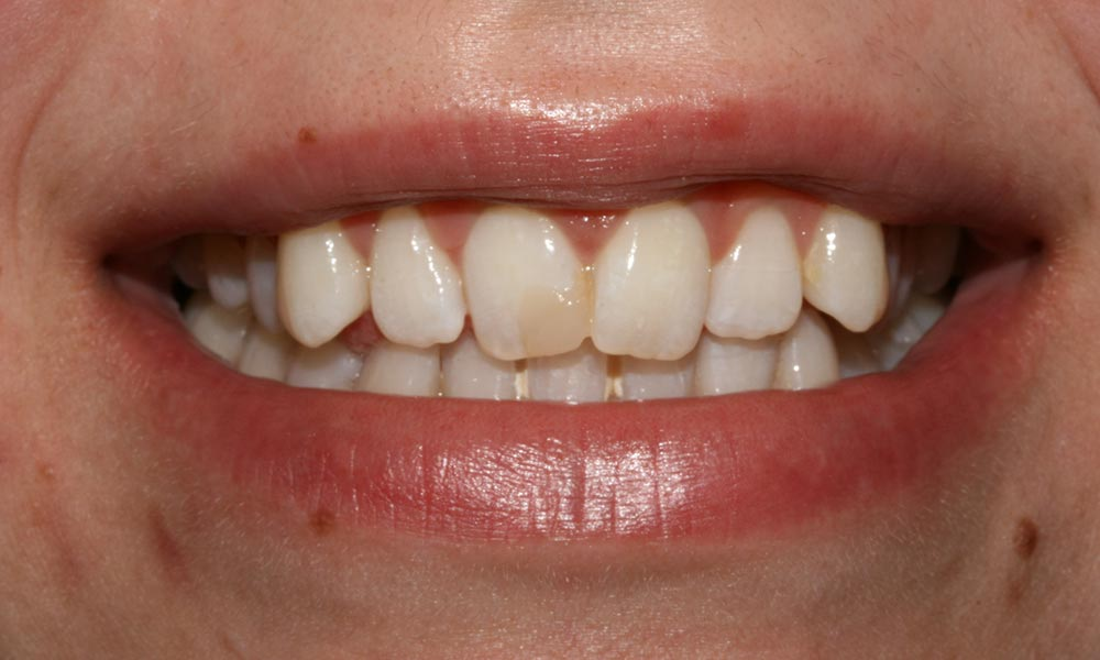 Before smile makeover showing staining on the front teeth of patient