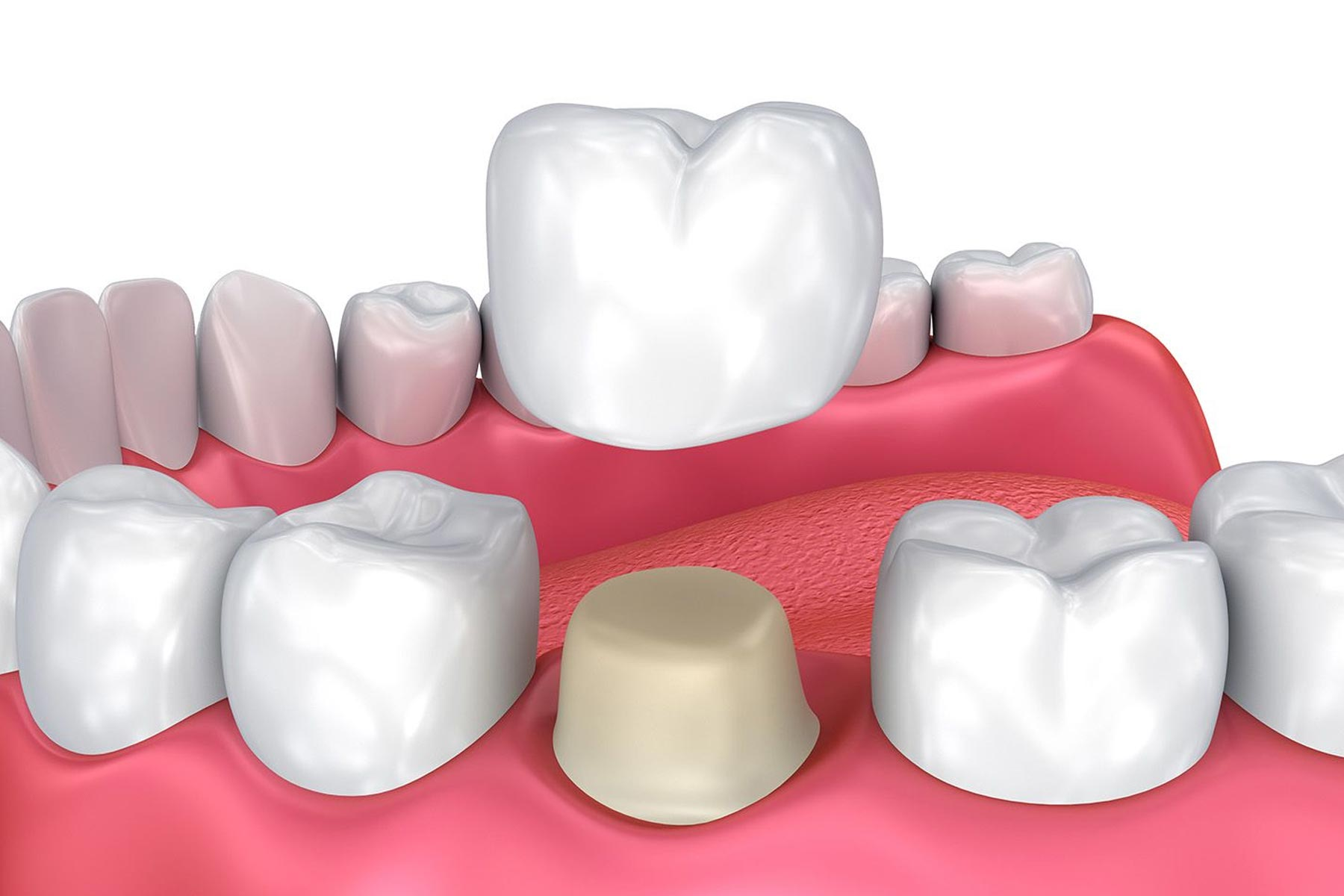 Dental crowns graphic showing up the crown fits into the mouth