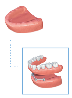 Graphic showing a full implant-secured denture attaching to the bottom gum where no teeth exist