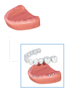 Graphic depicting how full arch implants can the secured to the bottom gum line and how the implants are placed ontop