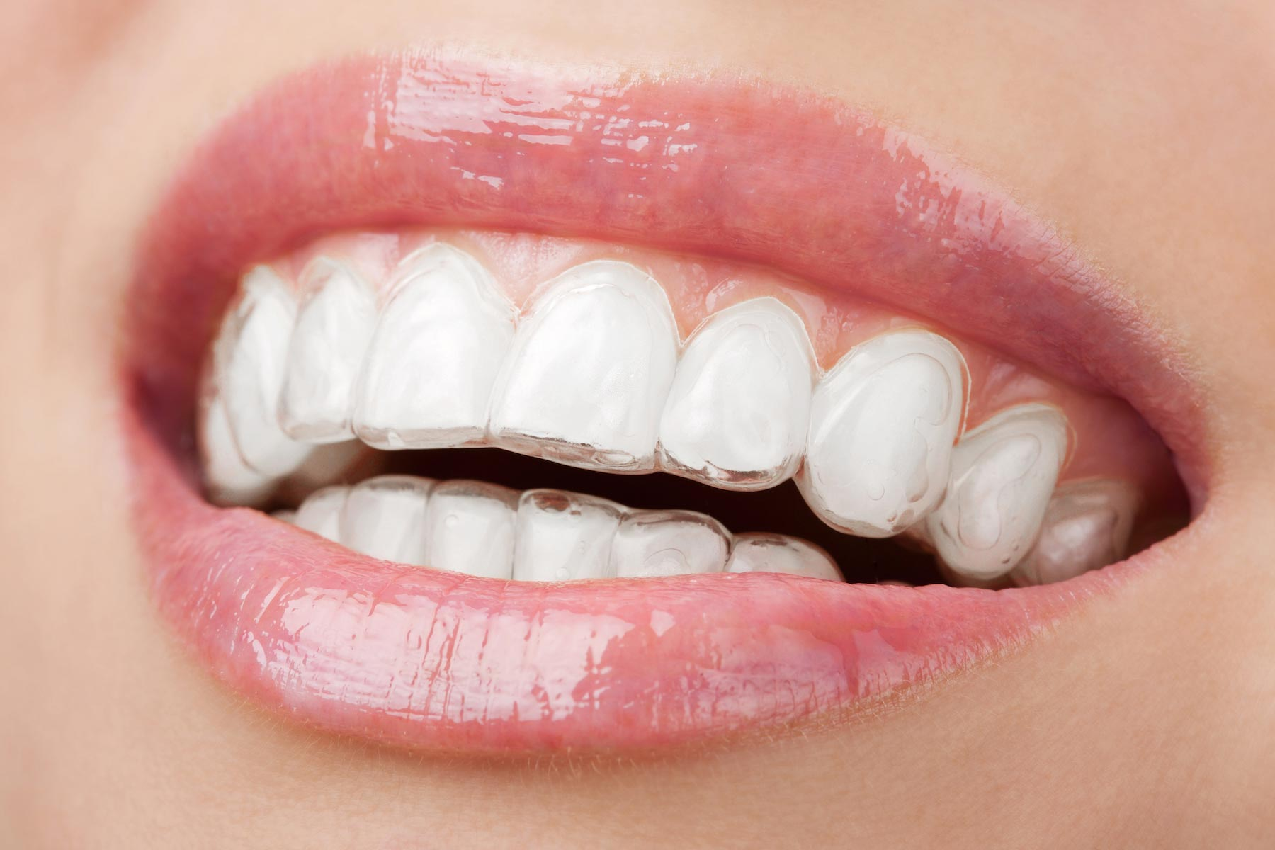 A close up image of mouth and teeth with Invisalign clear aligners fitted to the smiling patient