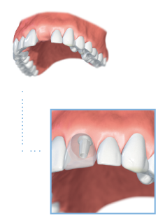 Graphic depicting upper teeth with missing front tooth with a section below showing the tooth gap replaced with a single tooth implant