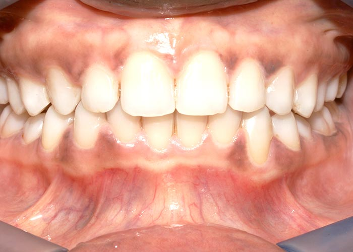 After orthodontics picture showing straight, clean teeth