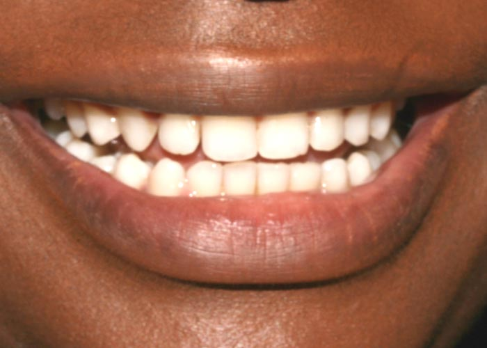After treatment picture showing clean, straight teeth of happy and smiling patient