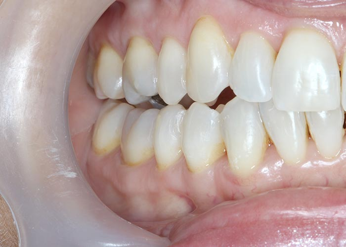 After orthodontic treatment showing once overcrowded teeth as perfectly straight and symmetrical
