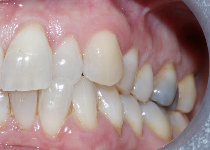 Before orthodontic treatment of misaligned and overcrowded teeth