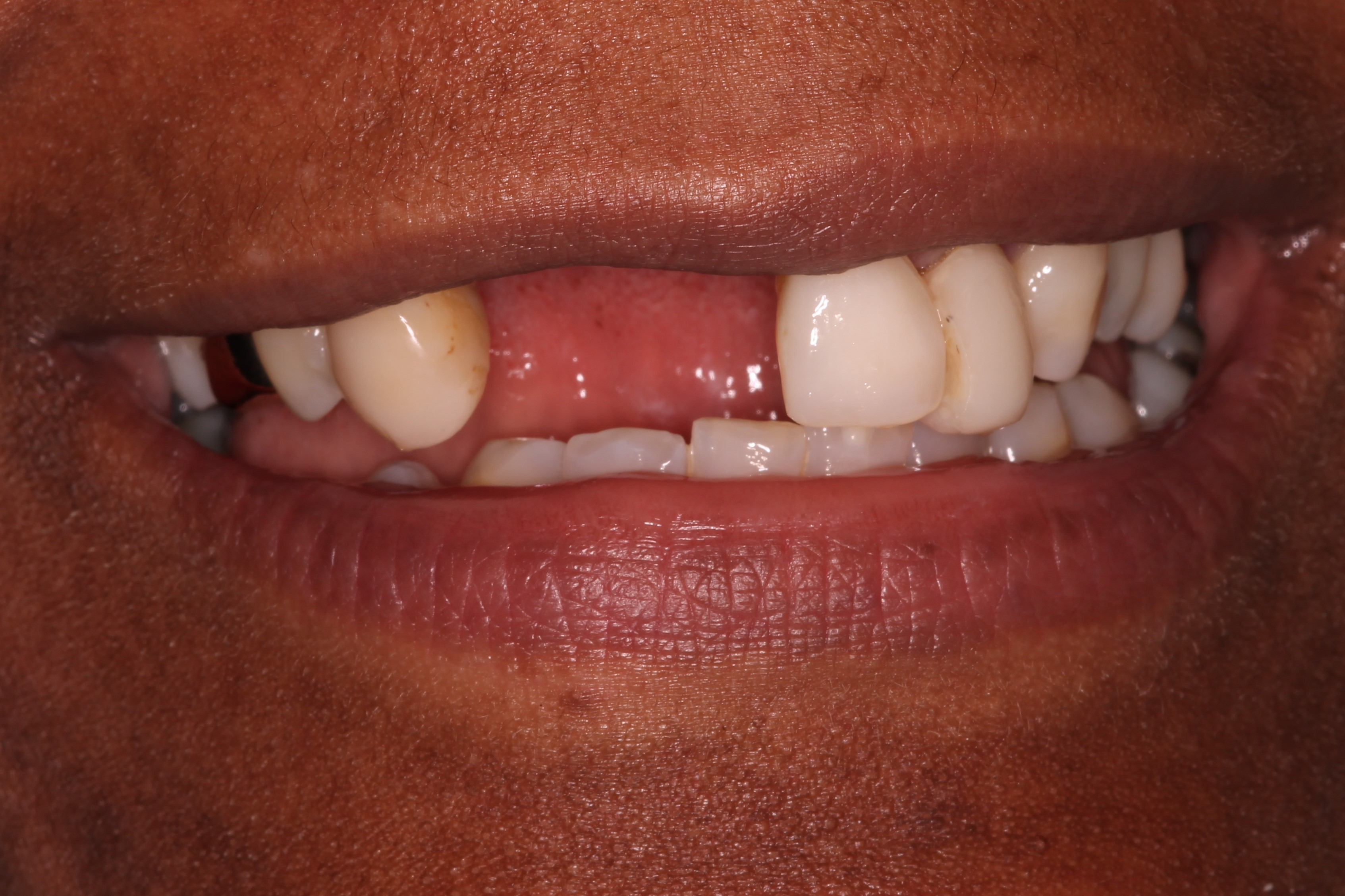 patient with two missing teeth before dental implant treatment