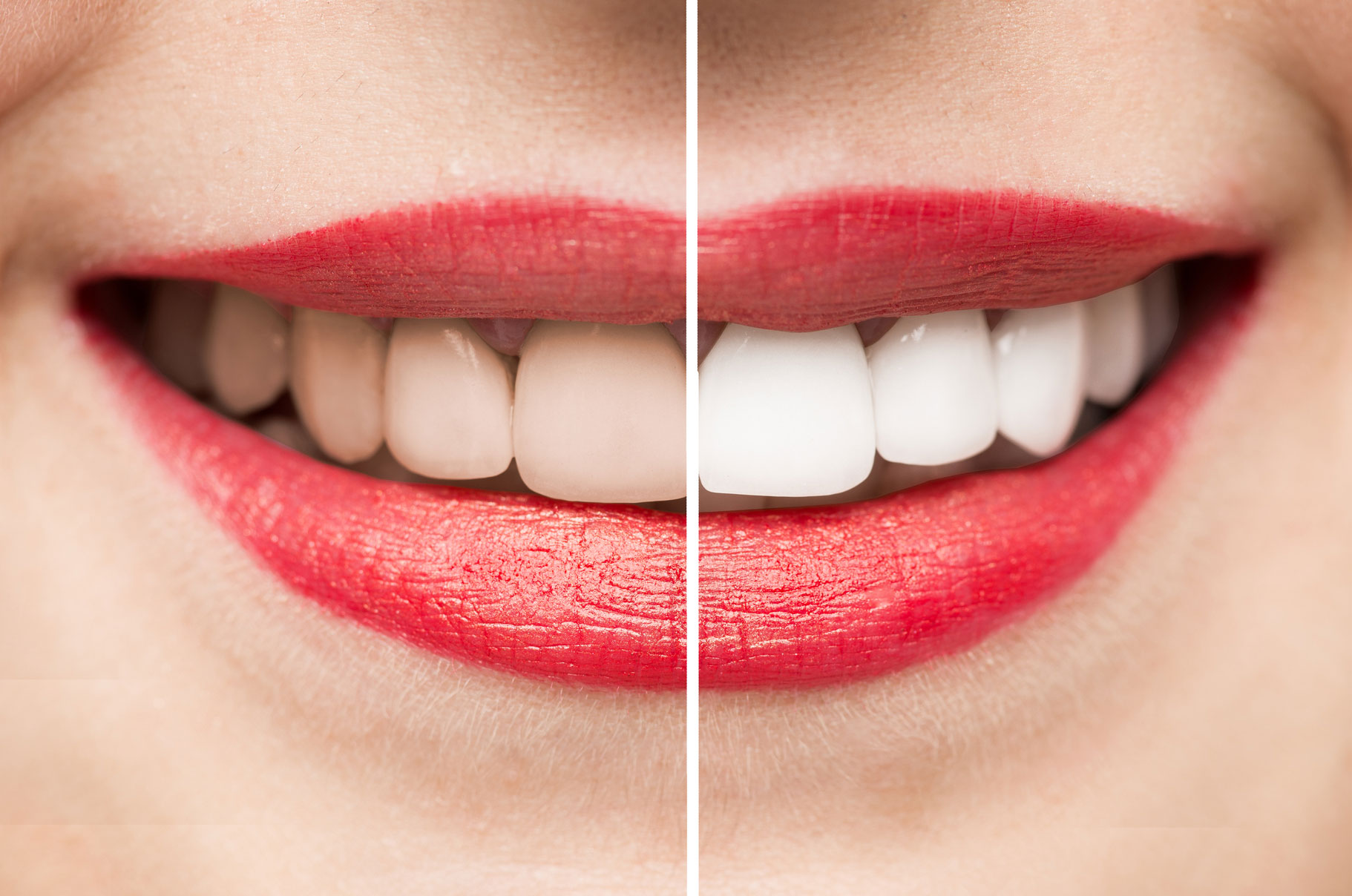 Showing teeth before and after whitening
